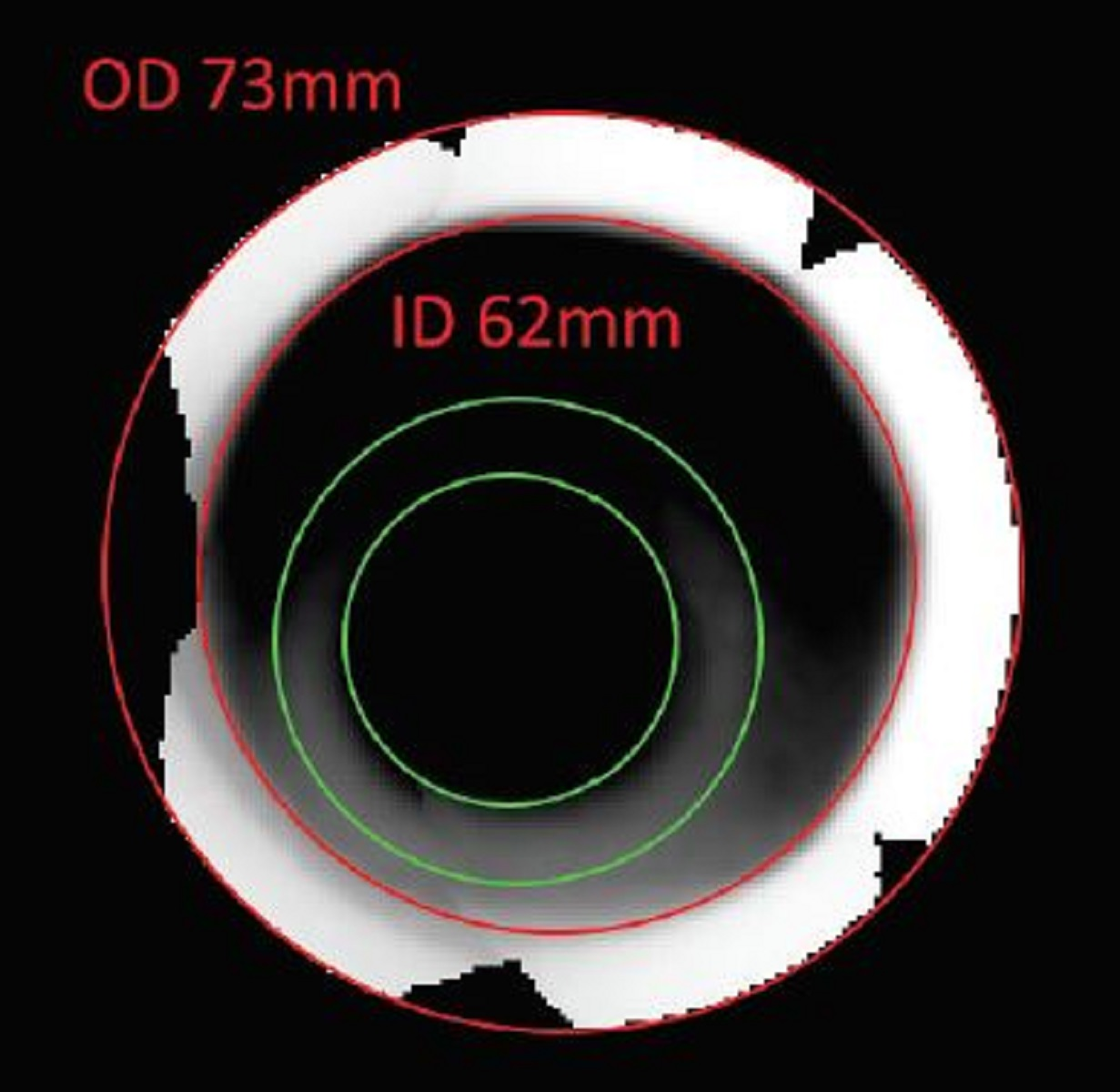 coiled tubing disconnect 2D xray image measurements